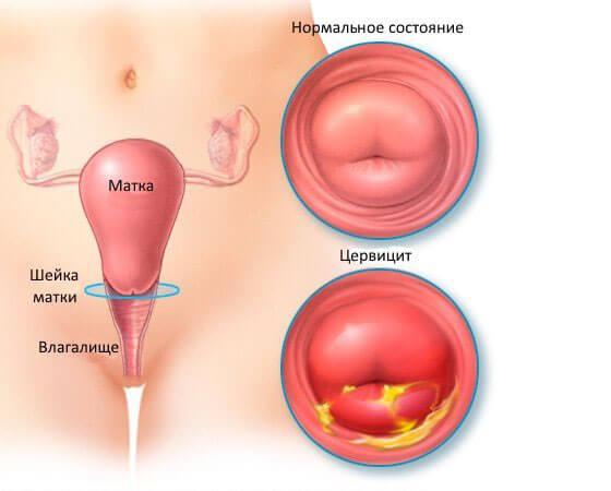 Цервикоз шейки матки: что это такое и способы лечения заболевания