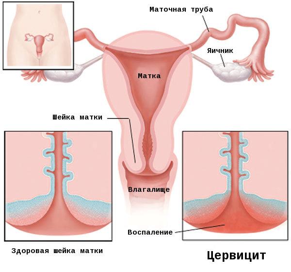 Лечение хронического цервицита шейки матки