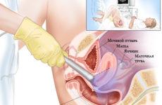Особенности проведения цервикометрии при беременности