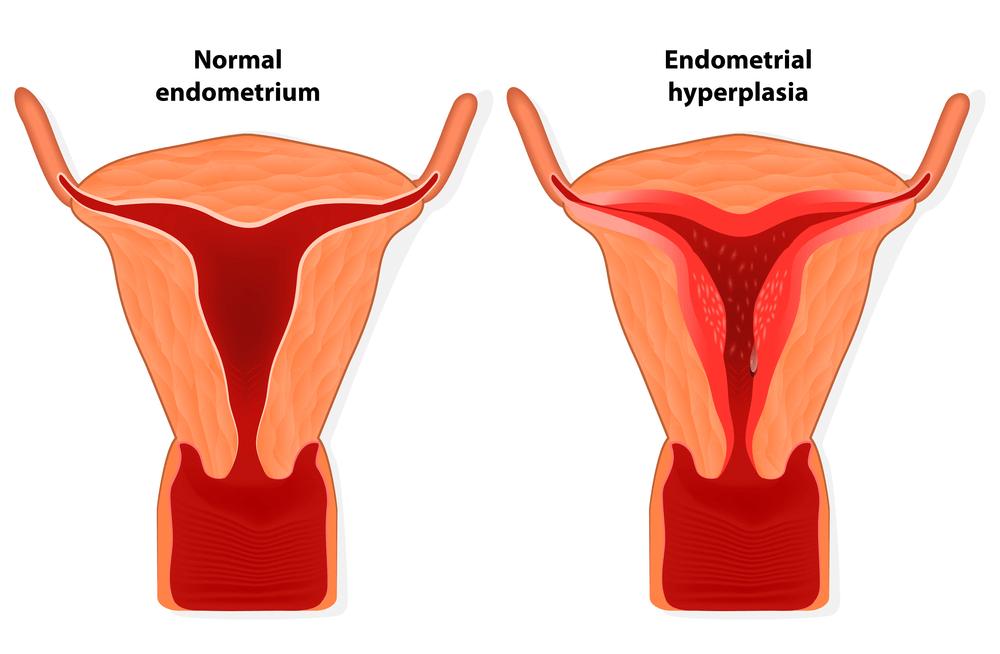 Чем отличается нормальный и гиперпластический измененный эндометриальный слой