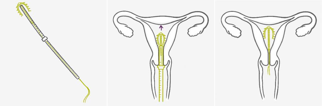 Установка внутриматочной спирали может стать причиной формирования кистозной полости