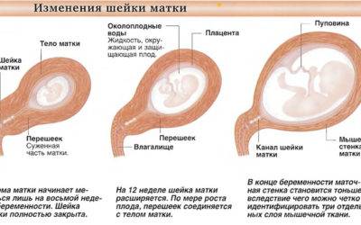 Шейка матки при беременности: какие значения длины являются нормой