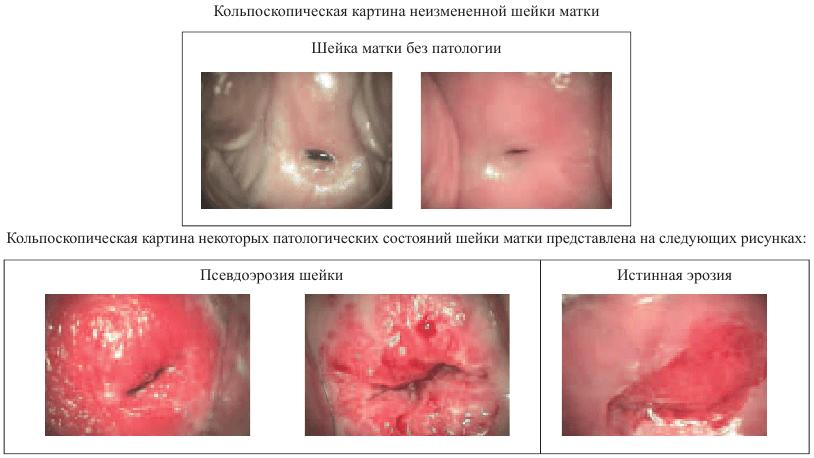 Кольпоскопическая картина в норме и при патологиях