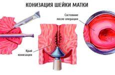 Конизация шейки матки: восстановление в послеоперационный период