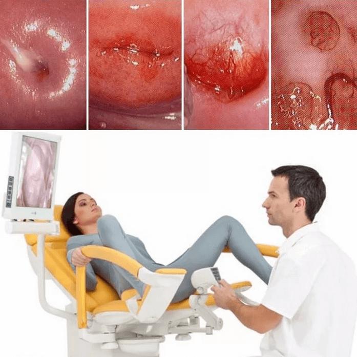 Хроническое воспаление считается благоприятным условием для образования наботовых кист.