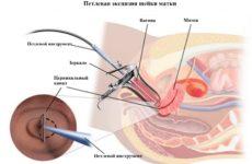 Виды эксцизии шейки матки и методика проведения