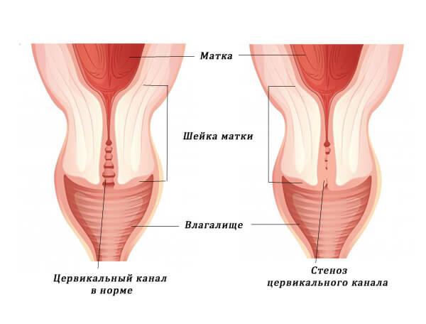 Бужирование шейки матки необходимо при стенозе цервикального канала