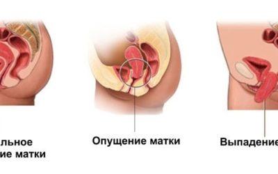 Опущение и выпадение шейки матки: причины и способы лечения