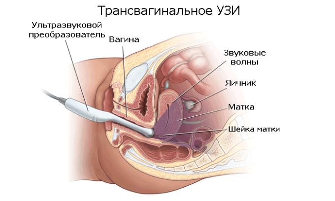 Диагностика шейки матки чаще всего проводится трансвагинальным методом