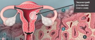 Гипертрофия эндометрия