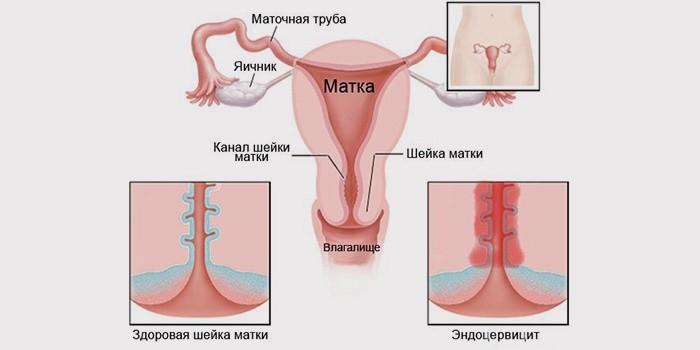 Цервицит может приводить к гипертрофии органов женской репродуктивной системы