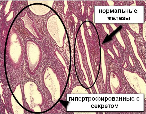 Вид гипертрофированных желез под микроскопом