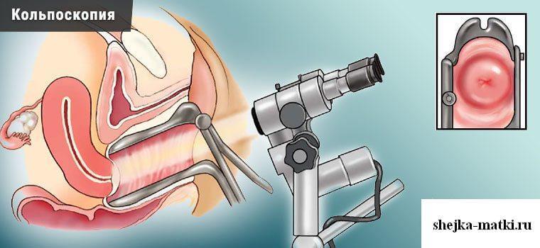 Осмотр под микроскопом