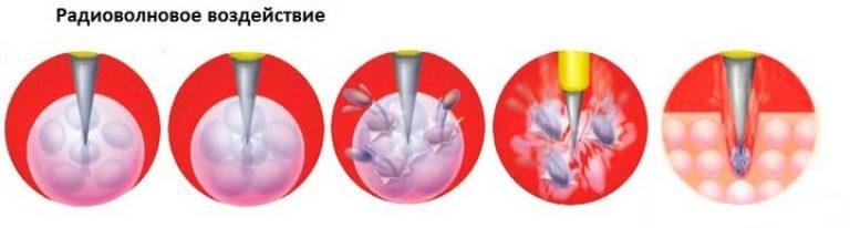 Лечение радиоволнами